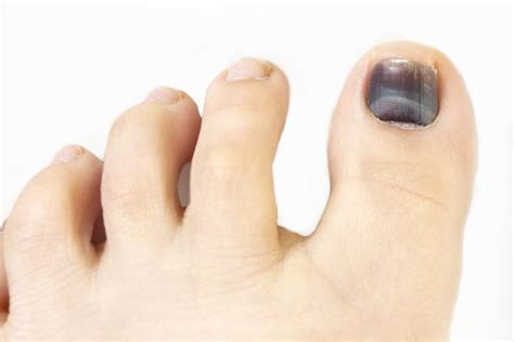 Reader question: Code 11740 for Drainage of Toe Nail
