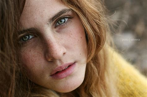 Medical Pictures Info – Freckles